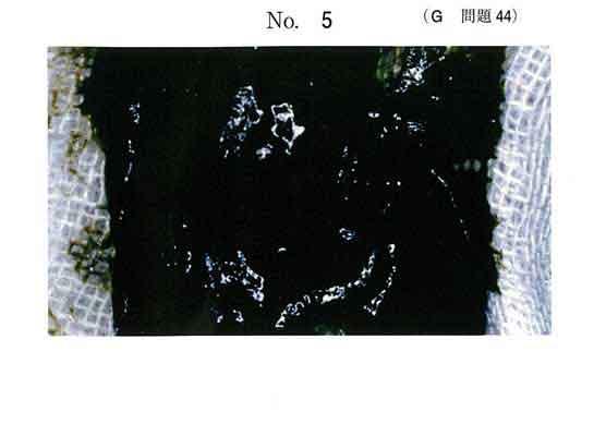 107G-44 : G問題 | MEC国試速報掲示板